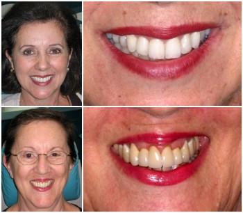 Advanced Dermatology And Cosmetic Surgery Vero Beach Fl